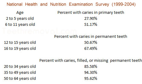 National Health and Nutrition Examination Survey dental caries