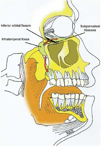 Wisdom Teeth Removal Complications