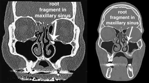 root fragment maxillary sinus