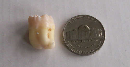 third molar nickel