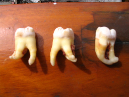 three wisdom teeth