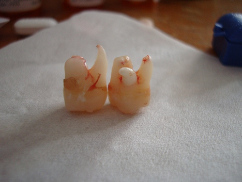 two wisdom teeth