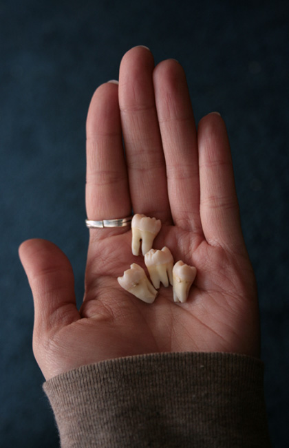 four wisdom teeth in womens hand