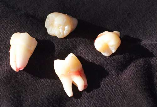 wisdom teeth image
