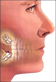 Adult Wisdom Teeth 66
